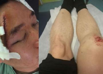 Hommage à Liu Shaoyo : « La police m'a frappé dans le dos, j'ai fini à l'hosto »