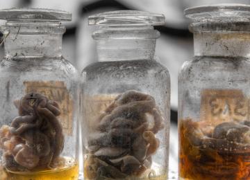 Au musée des pathologies, tout baigne... dans le formol