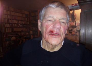Gilbert, pasteur de 83 ans matraqué par les CRS : « La douleur a été extrême »