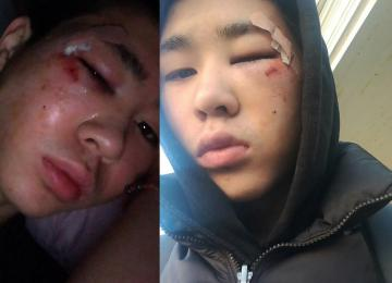« J'ai 16 ans, je me suis fait tabasser par la police, alors que je n'avais rien fait »